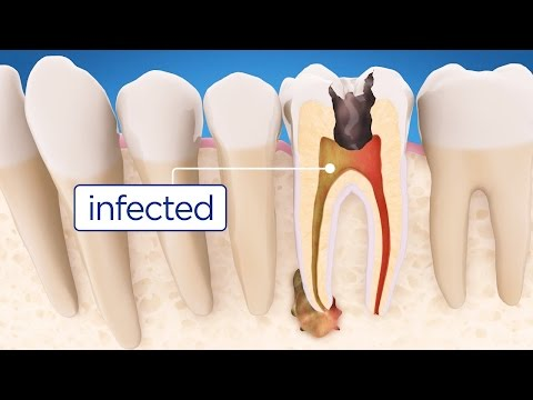 Root Canal Treatment Step by Step - English