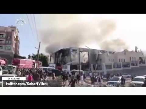 [04 May 2017] یمن پر سعودی عرب کی وحشیانہ جارحیت - Urdu
