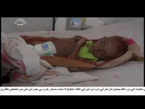 [14Jan2018] سعودی عرب بدترین عالمی انسانی بحران کا ذمہ دار   - Urdu