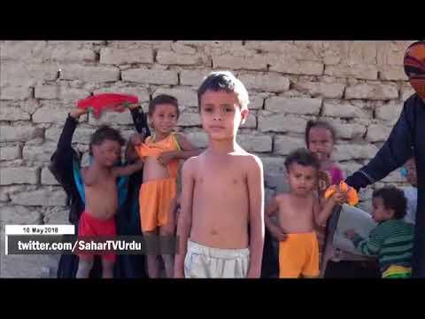 [10May2018] یمن میں بے گھر افراد کی صورت حال  - Urdu