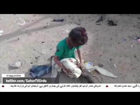 [15Aug2018] یونیسف کی جانب سے یمنی بچوں پر سعودی حملوں کی مذمت- Urdu