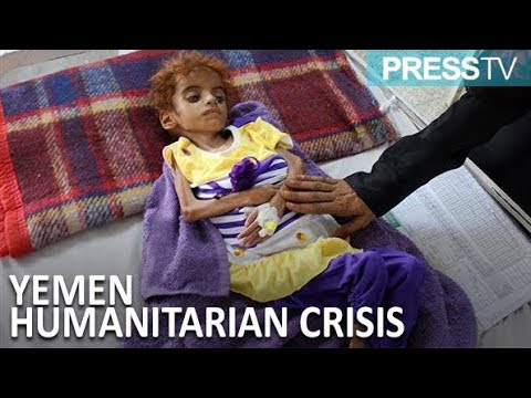 [17 October 2018] \'12mn Yemenis may face worst famine in 100 years\' - English