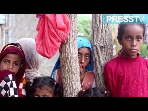 [8 November 2018]  14 million of Yemeni people on brink of famine - English