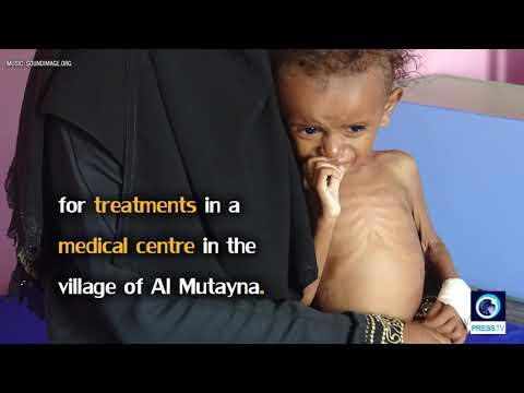 [3 December 2018]  Yemen crisis: 85,000 children \'dead from malnutrition\' - English