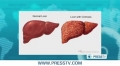 [24 July 13] WHO recognizes July 28th as World Hepatitis Day - English