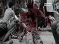 نتیجه بررسی مرکز حقوق و توسعه از 128 روز تجاوز به یمن - Farsi