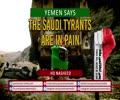 YEMEN Says: The Saudi Tyrants Are in Pain   HD Nasheed   Arabic Sub English